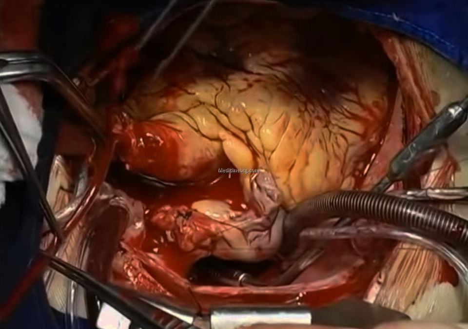 Heart Transplant Procedure Pictures Wallpapers