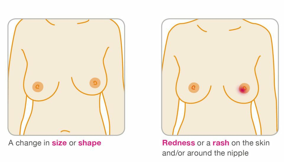 Always check your breasts regularly to know whether change in size or shape is normal for