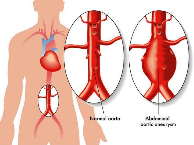 Aneurysm Definition_123222
