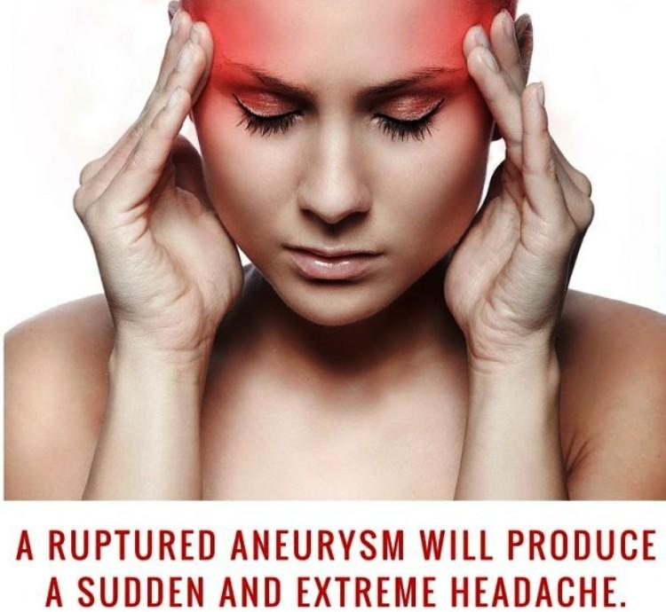 Aneurysm Symptoms Pictures Wallpapers