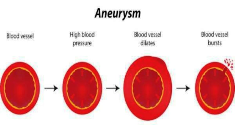 Aneurysm Pictures Wallpapers