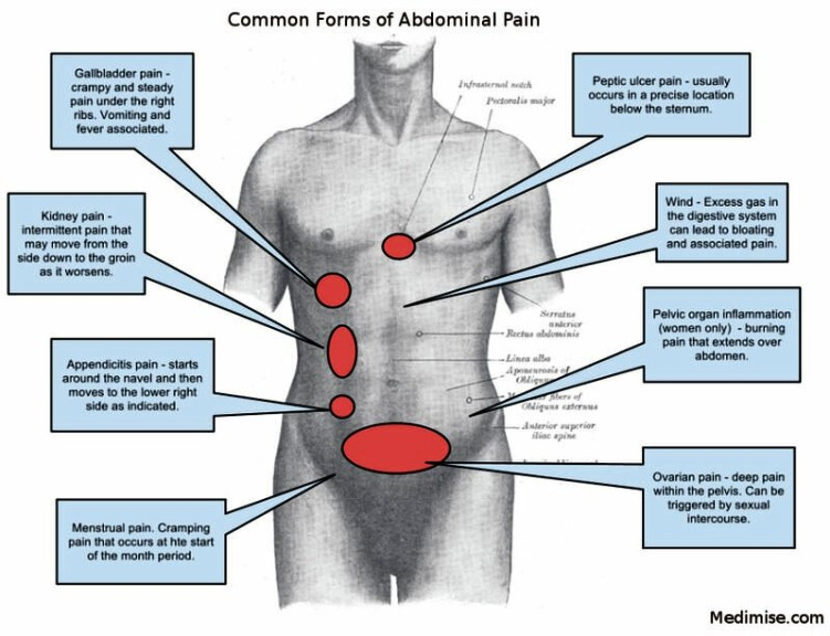 Appendix Pain Location Pictures Wallpapers