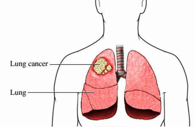 Cancer In Lung Pictures Wallpapers