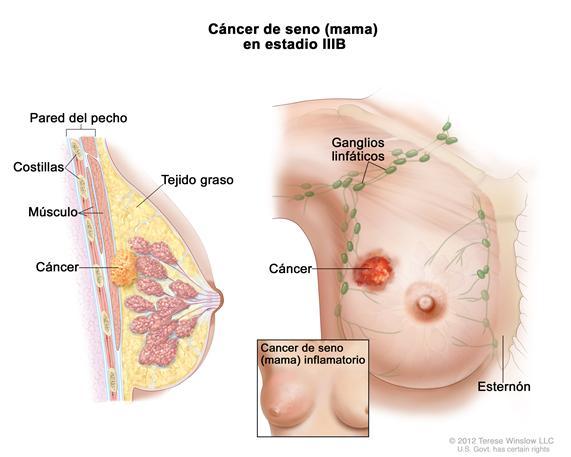 Cancer de seno (mama) inflamatorio 182833
