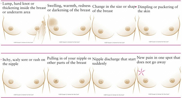 Eight Warning Signs Breast Cancer 124451