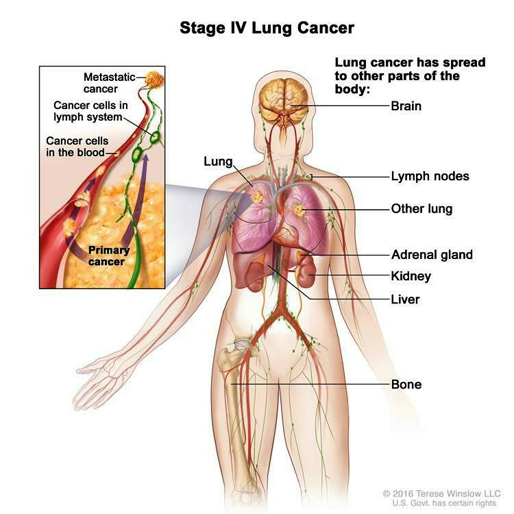 Enlarge Stage IV non small cell lung cancer 182772