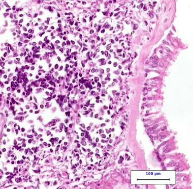 High power photomicrograph of small cell carcinoma 117263