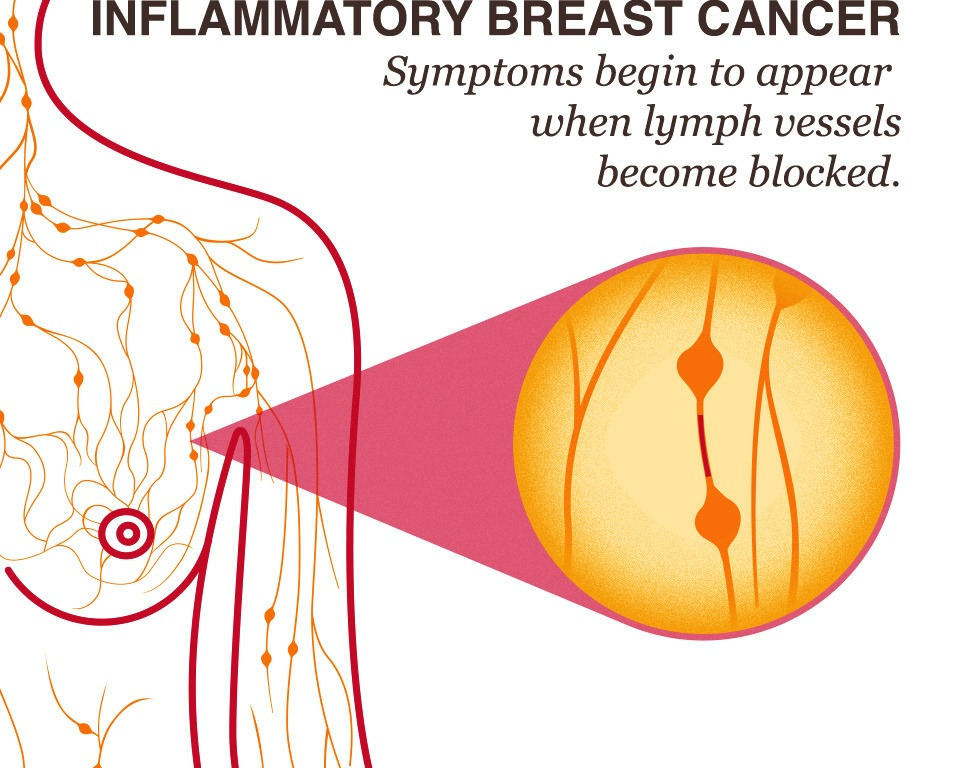 Inflammatory Breast Cancer (IBC) 17272