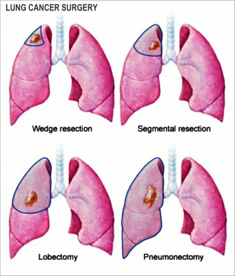 Lung Cancer Surgery Pictures Wallpapers