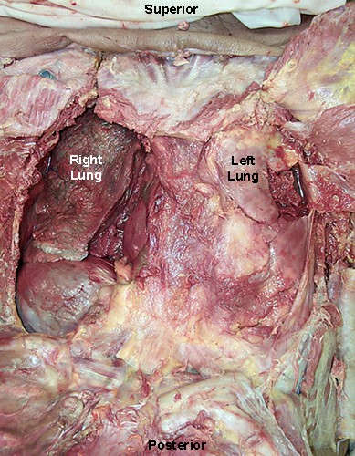 Lung Cancer in Left Lung of Cigarette Smoker 111772