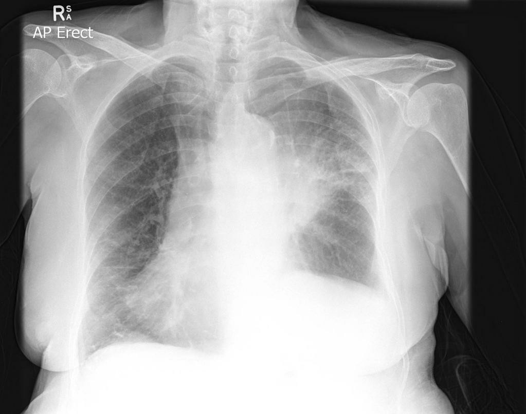 Lung cancer   left upper lobe 182882