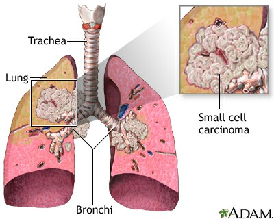 Lung cancer   small cell 172772