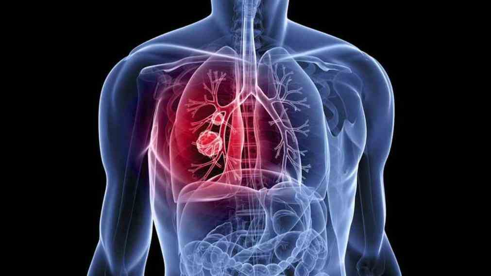 Lung cell lung cancer nsclc is the most common