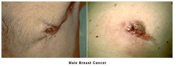 Male Breast Cancer Photo 126622