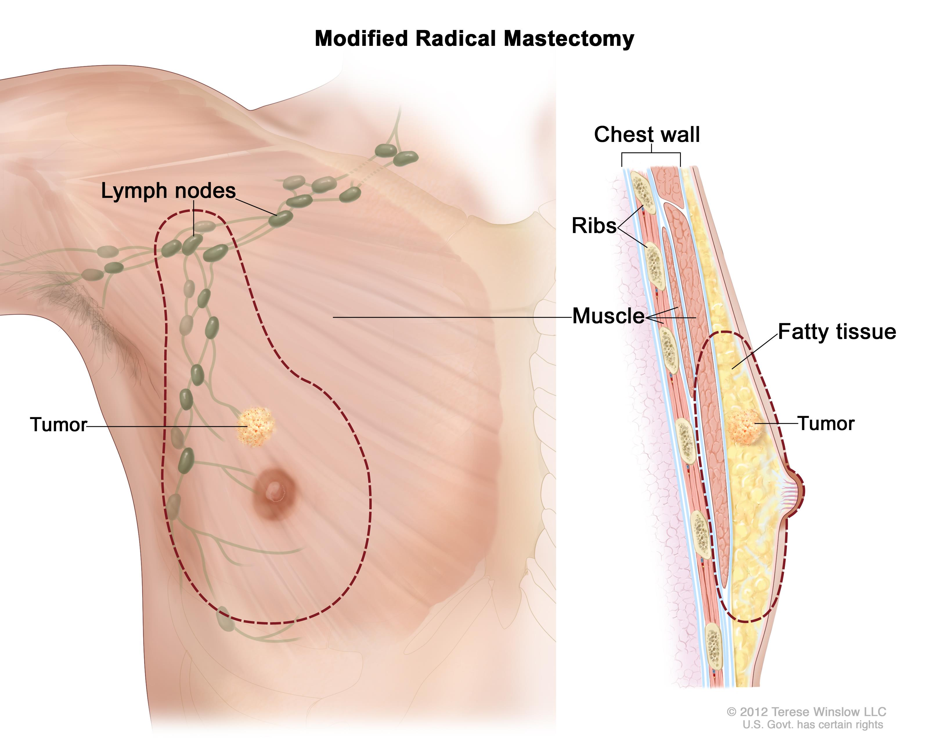 Male Breast Cancer Treatment 118282