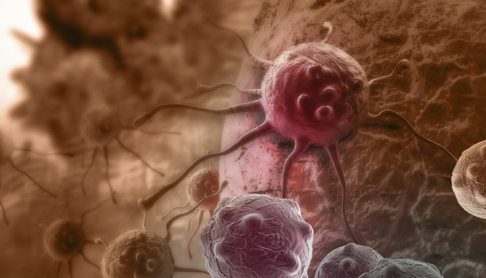 NSCLC Cell 11828