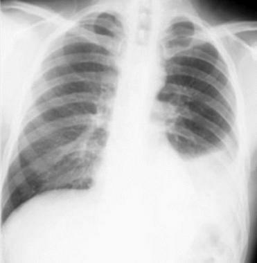 Non–small cell lung cancer Left pleural effusion 172772
