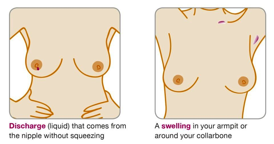 Signs that mean you could have breast cancer 172721