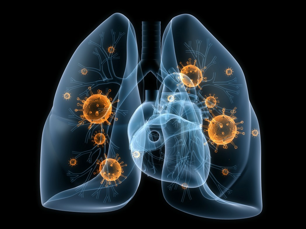 Stereotactic Ablative Radiotherapy Explored In Patients With Operable Non Small Cell Lung Cancer