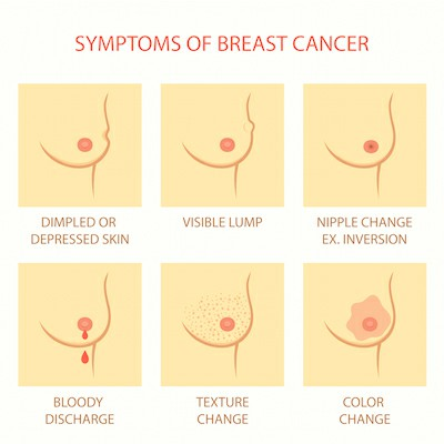 Symptoms Of Breast Cancer Picture 155522