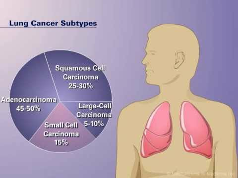 The Pathophysiology of Non small Cell Lung Cancer 118283