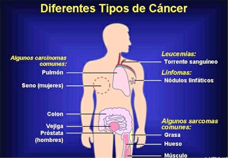 Tipos de cáncer, síntomas especificos