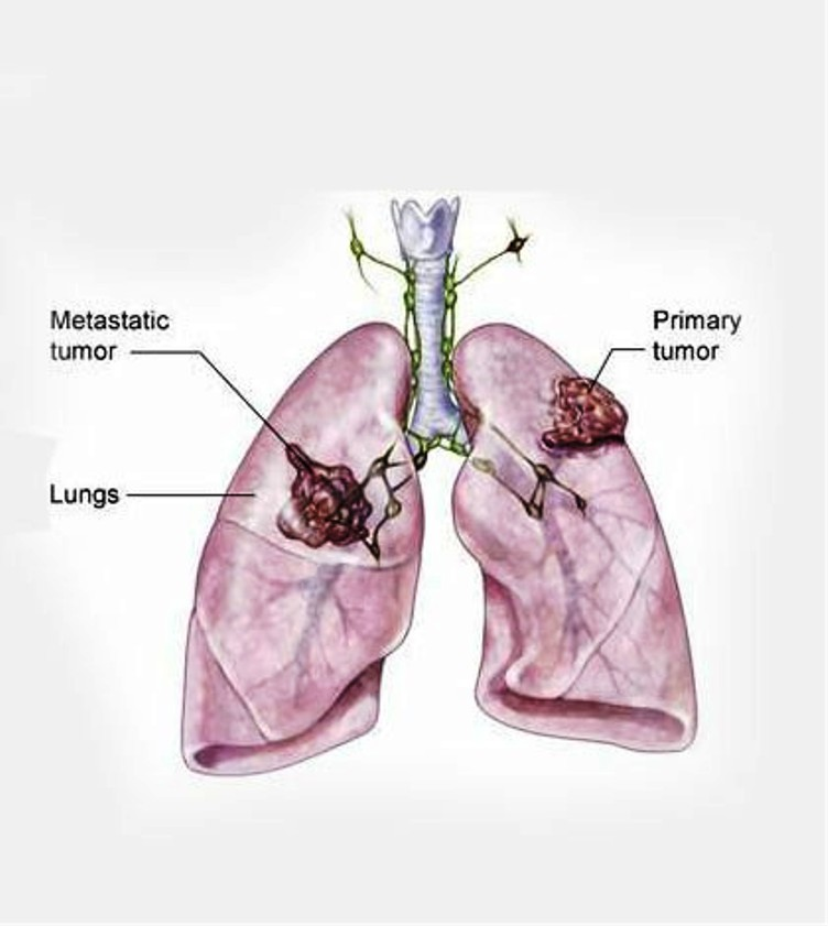 Various Options for Stage 4 Lung Cancer Treatment 132342