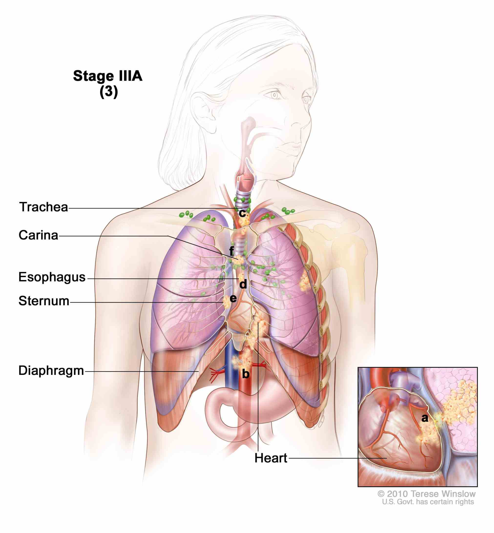 Stage 4 Cancer Lung Pictures Wallpapers