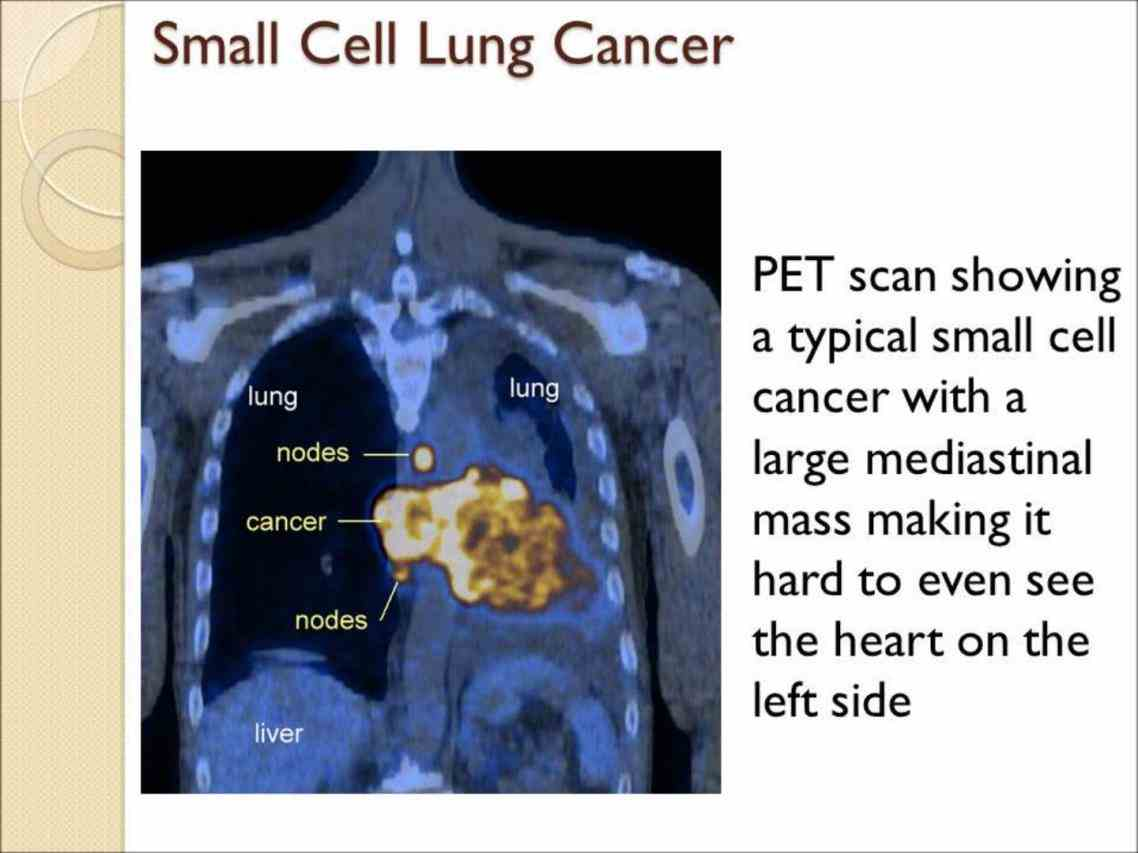 Small Cell Cancer Lung Pictures Wallpapers