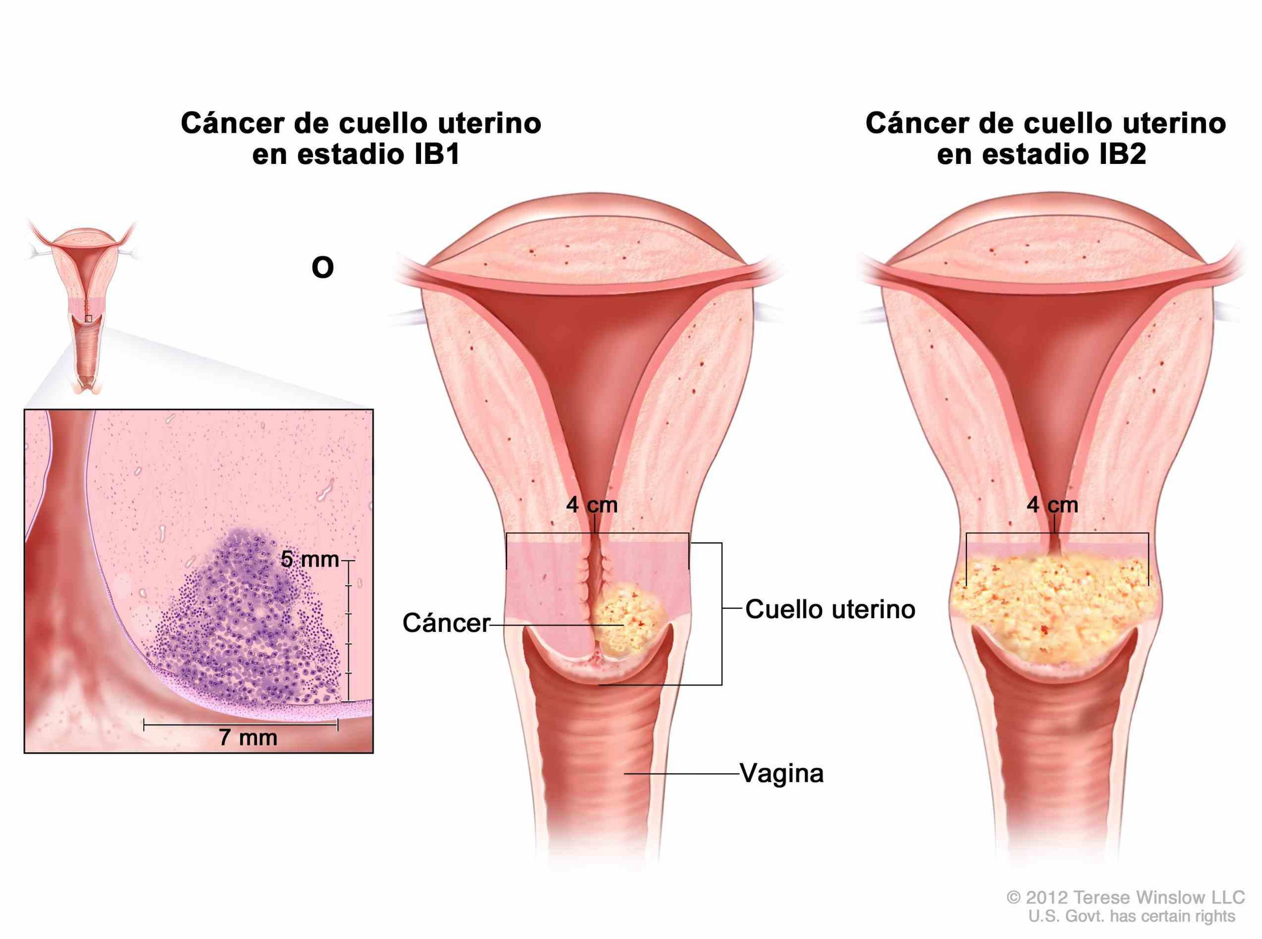 hoja Cancer De Cuello informativa acerca de los