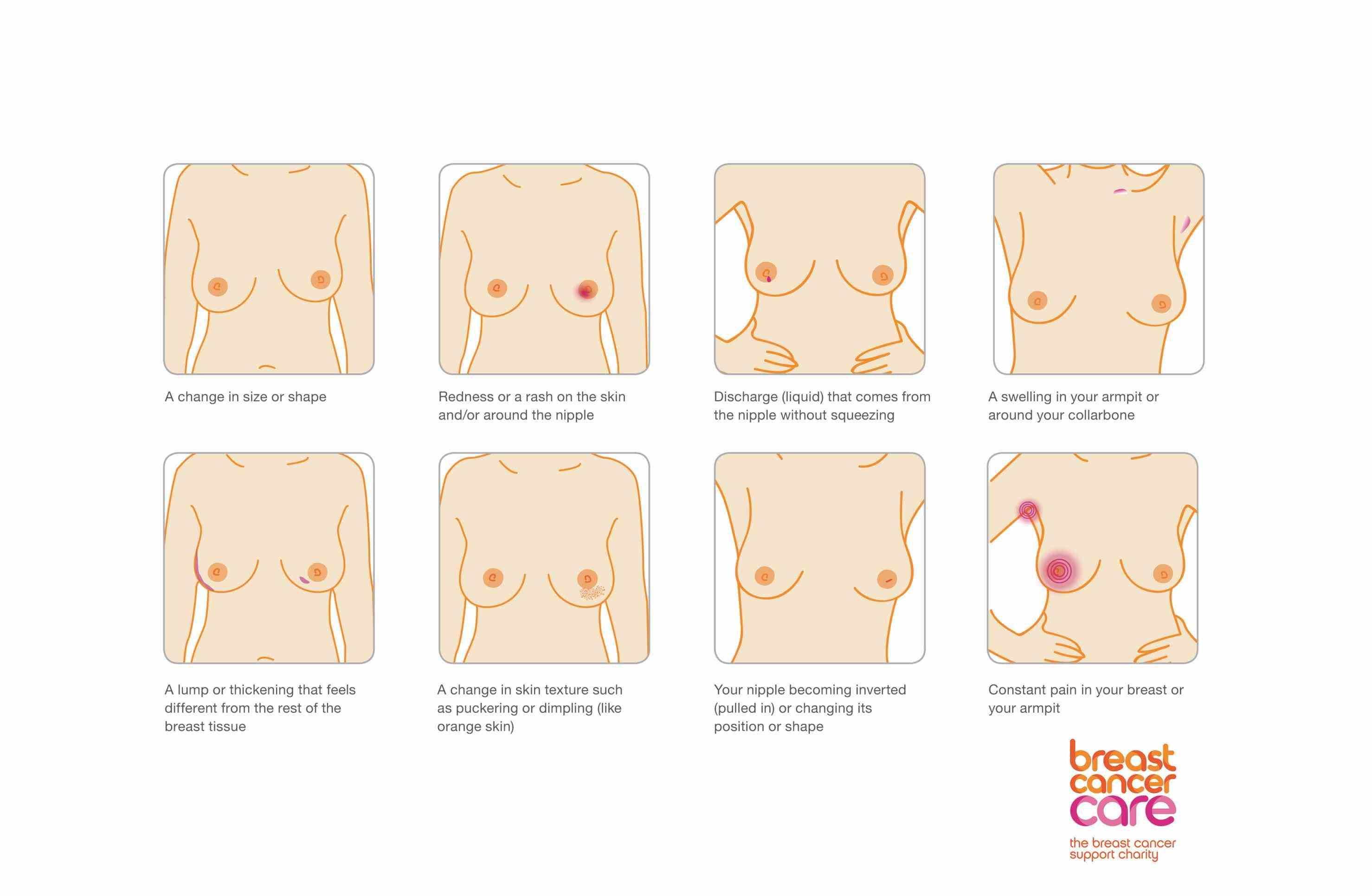 Can You Have Breast Cancer With No Symptoms Pictures Wallpapers
