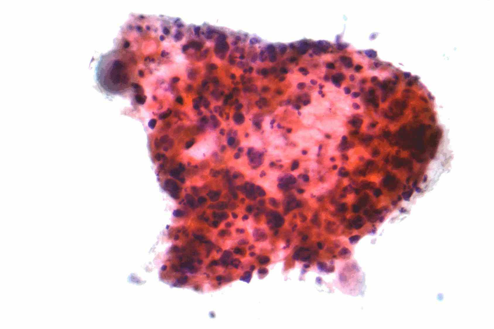 learn more cell read Small Cell Cancer Lung our