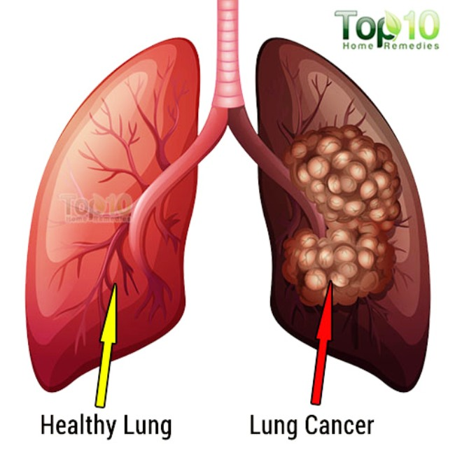 lung cancer vs normal lung
