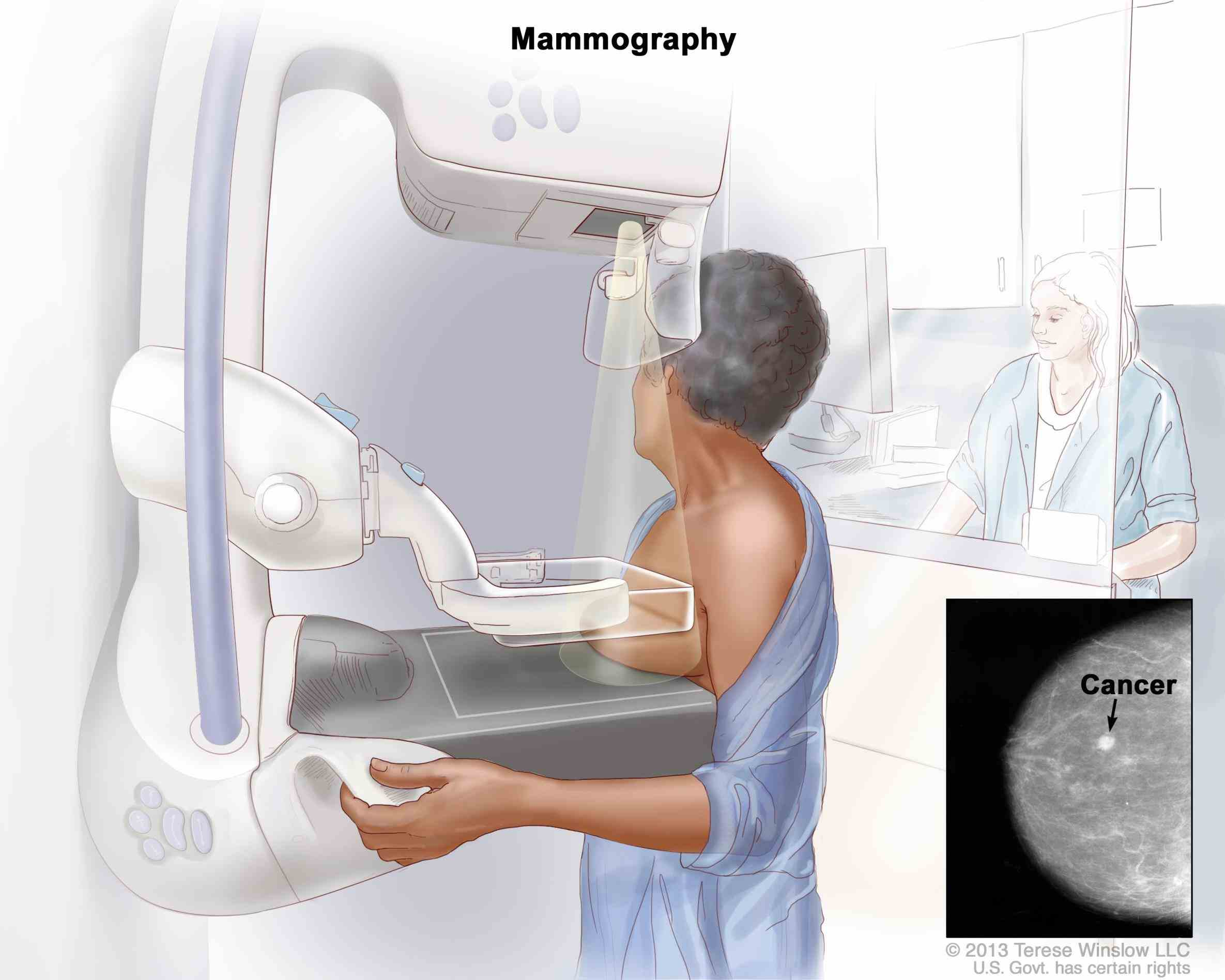 men Breast Cancer Screening For Men have much