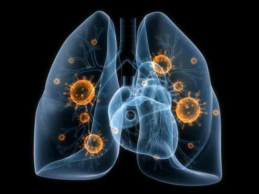 nonsmallcell Non Small Cell Cancer Of The Lung lung