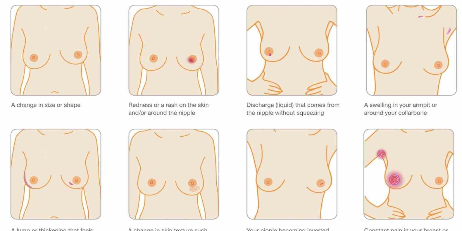 soreness burning sensation or sharp pain  a Breast Pain