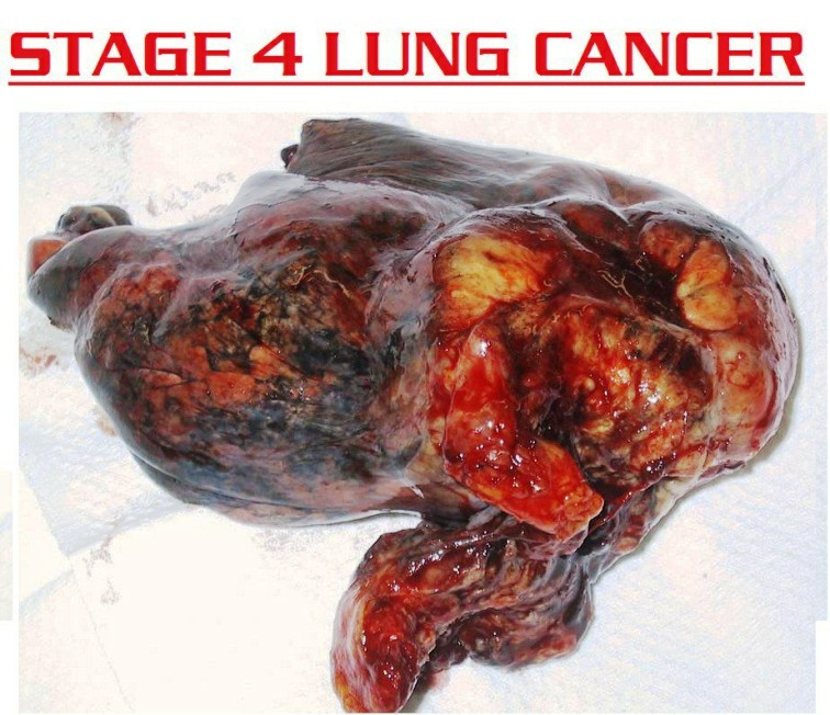 stage 4 lung cancer 118288