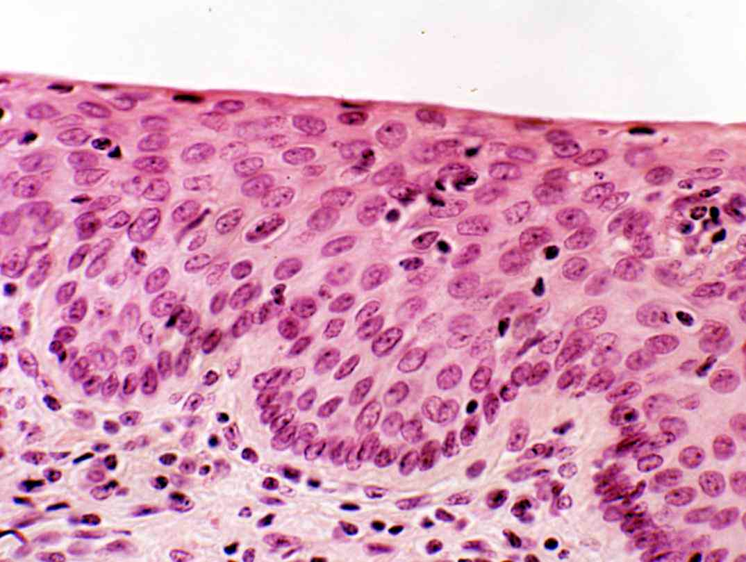 Tissue In Skin epi thele ium is one of the four basic types animal tissue along with epithelium lines