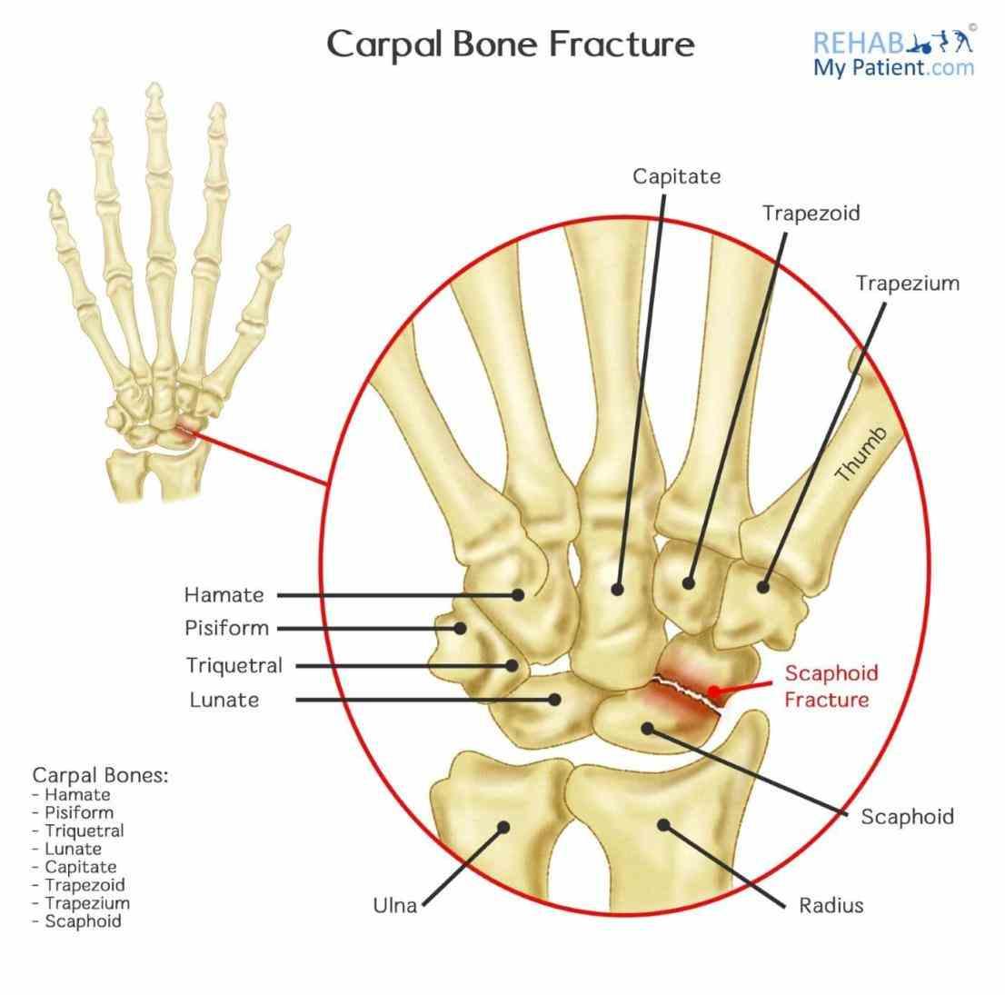 Carpal Bones Pictures Wallpapers