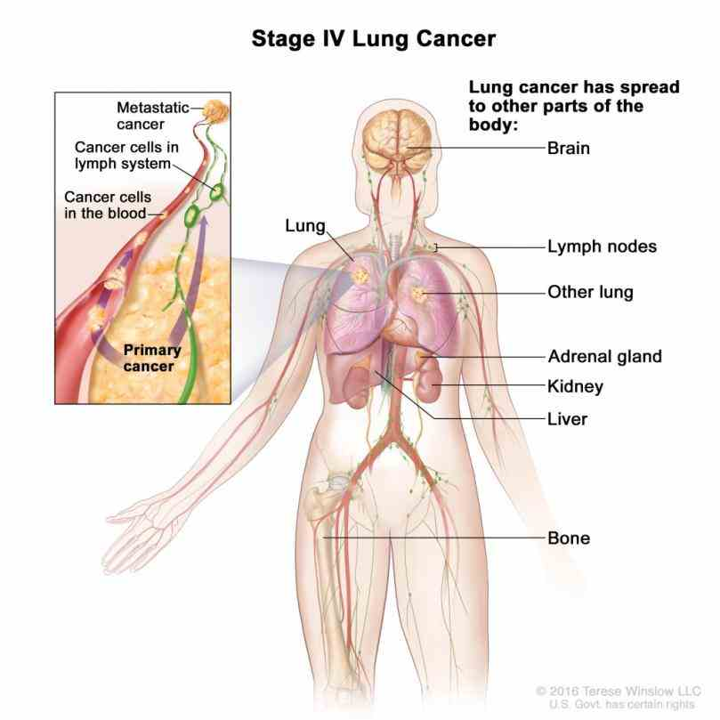 Destroy The Location Of The Lungs In The Body Lungs Are Primary