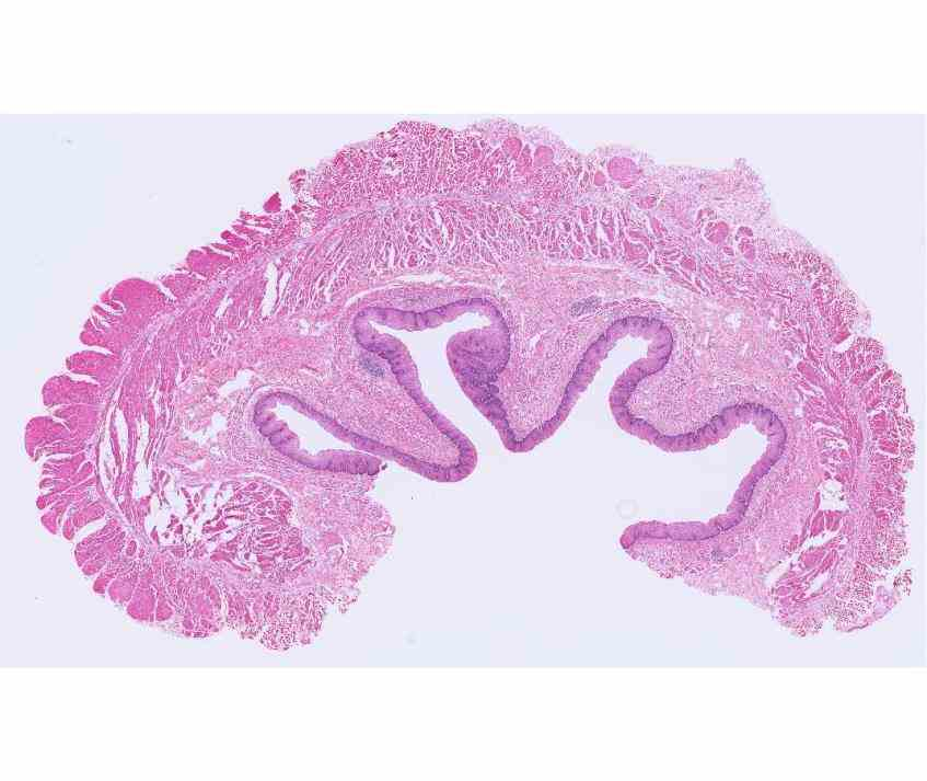 Epithelium Of The Esophagus Pictures Wallpapers