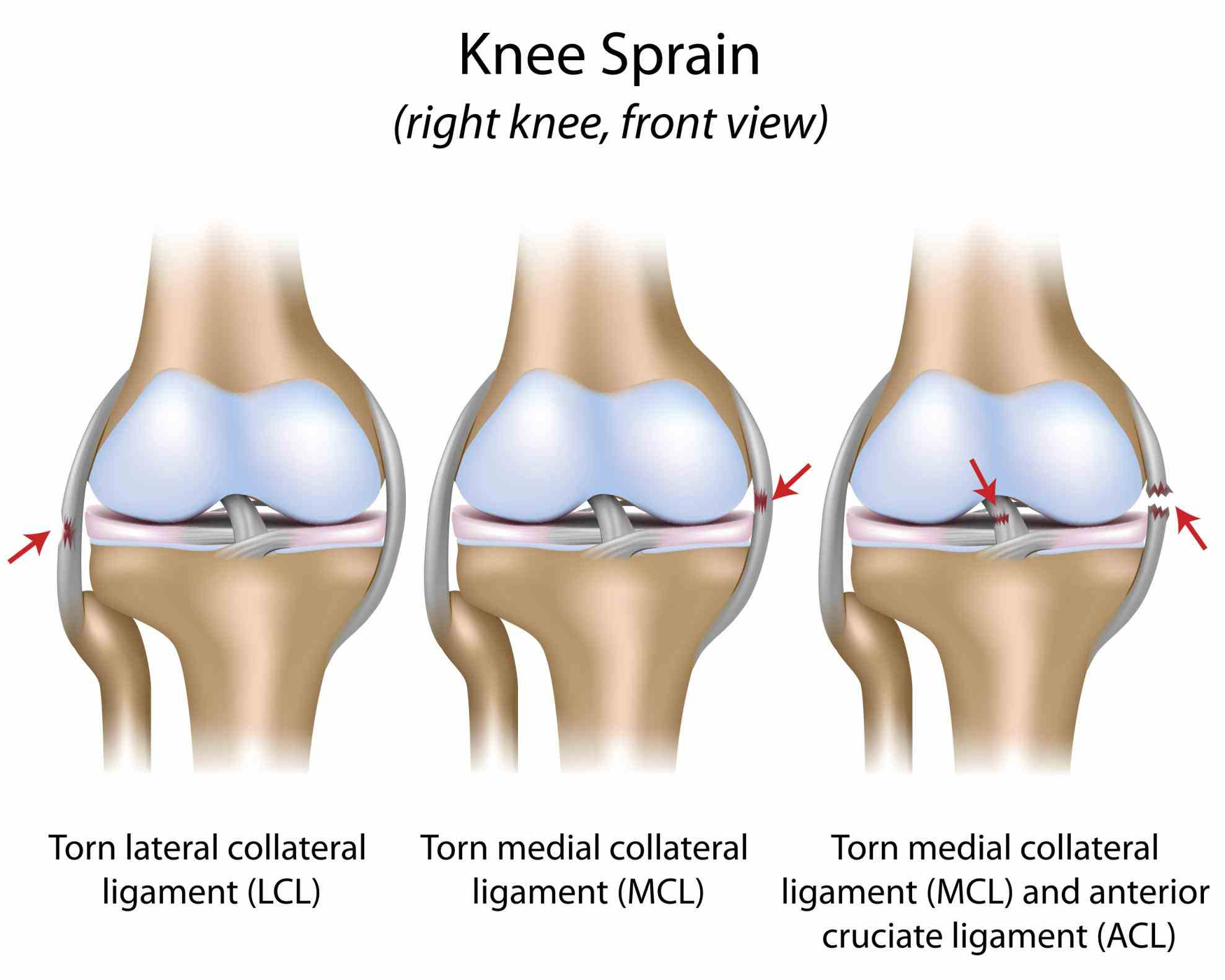 one of most easily injured it made up four main things bones cartilage ligaments tendons de Anatomy Of Knee