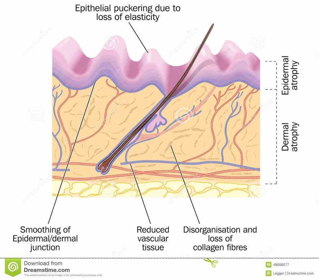 the outer layer skin; lines  de Epithelial Tissue In Skin fev for example the skin is composed of a