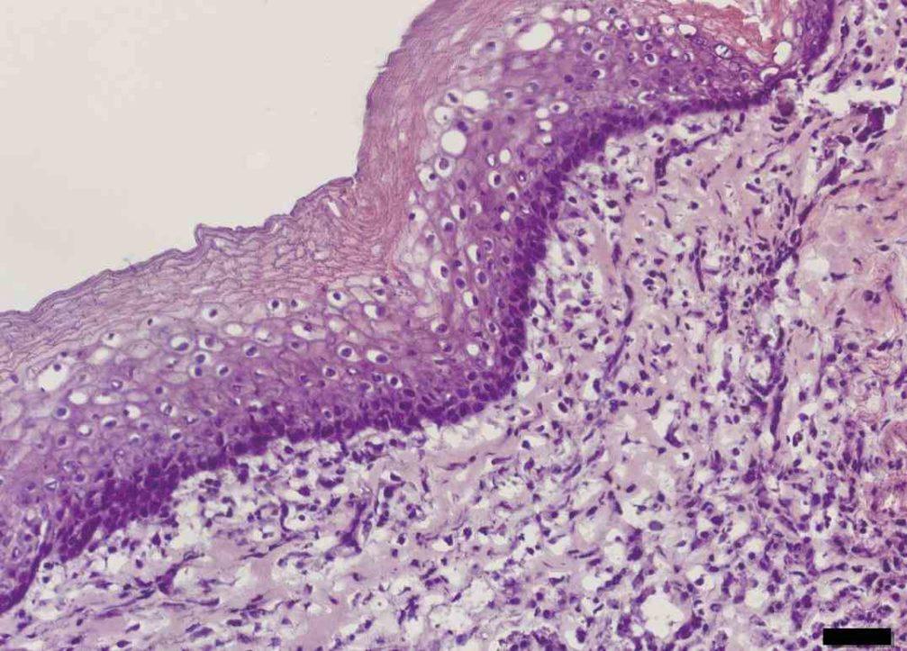 name the epithelium purple tissue