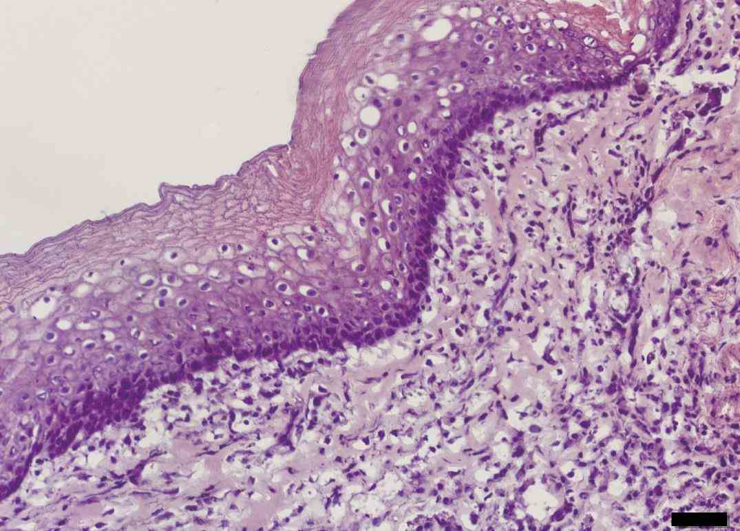 this photograph shows lining epithelium of at high power de Epithelium Of The Esophagus ago the oesophagus is first