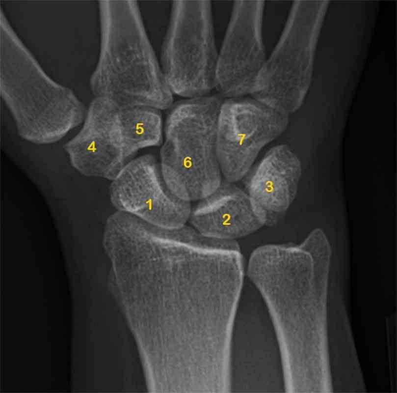 trapezoid capitate hamate carpal Carpal Bones bone any of several small angular bones that in humans make up the