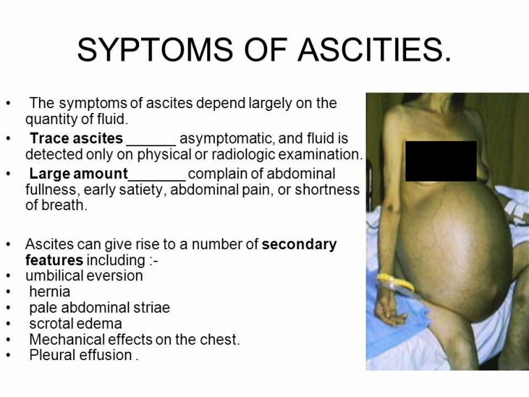 Ascites Symptoms Pictures Wallpapers