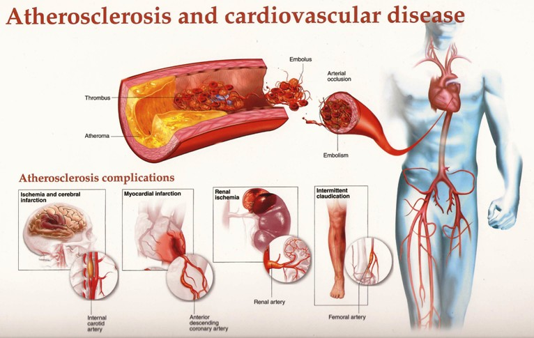 Atherosclerosis And Cardiovascular Disease Pictures Wallpapers