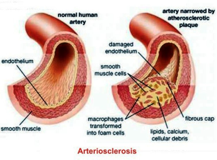 Atherosclerosis Pictures Wallpapers