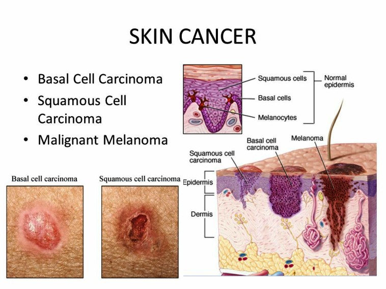 Basal Cell Cancer Pictures Wallpapers